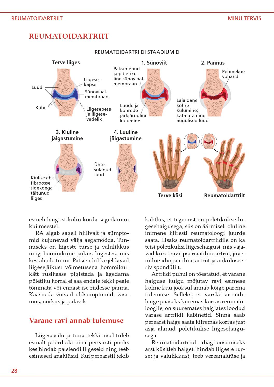 Hakkab sormede liigestele haiget tegema Valu liigeste liigestes