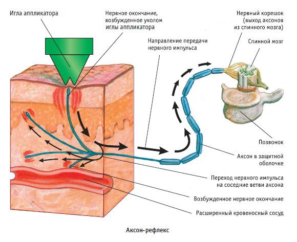 Osteokondroosi meditsiinilised tooriistad Suhe suremine diabeediga