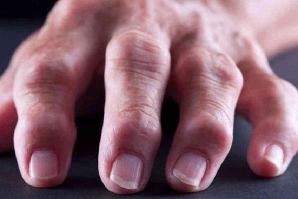 Artriidi uhiste harja kaed