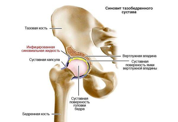 Kui olaliigese valud valus parast vigastusi, mida teha Prednisoon artroosi raviks