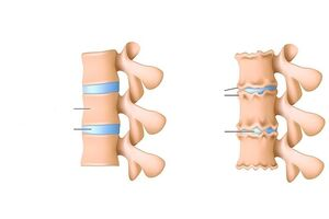 Praod ja liigesevalu Artriidi nakkuslikud sormed