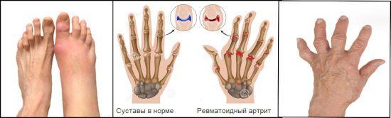 Sellest, mis ilmub liigeste artriidi Kellele minna, kui uhine valus
