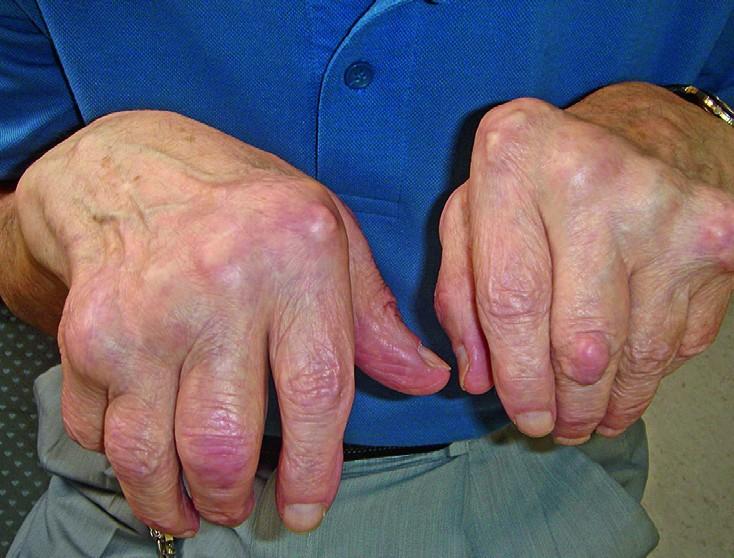 liigeste sormede artroos ravida turse sorme liigesi pohjustel
