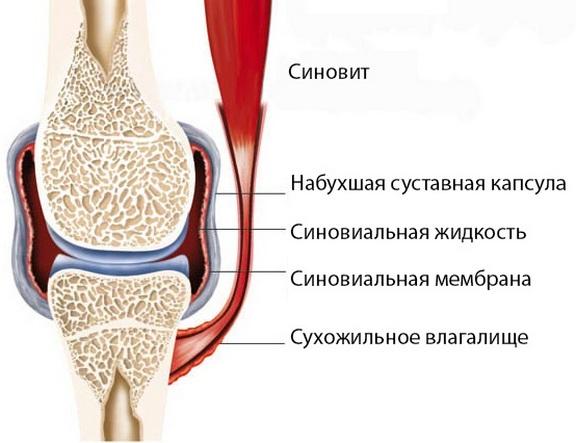 Artropaaty liigeste ravi