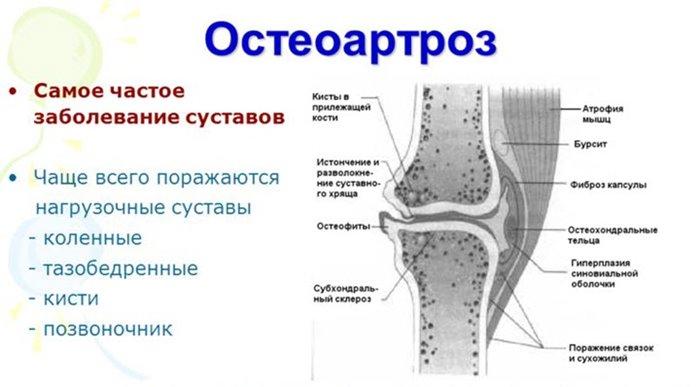 Liigeste artroos peatub 2 kraadi Valus olaliigese parast Brusevi