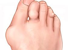 Hoidke harja sormede liigeseid