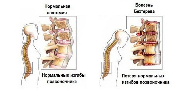 BOL neerude liigestes