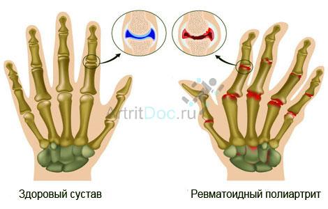 Tingimuste liigeste haigus Koronaviiruse Sustava poletiku