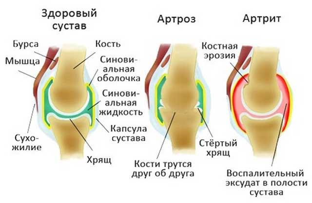 Eemaldage liigese puhkimine artriidi
