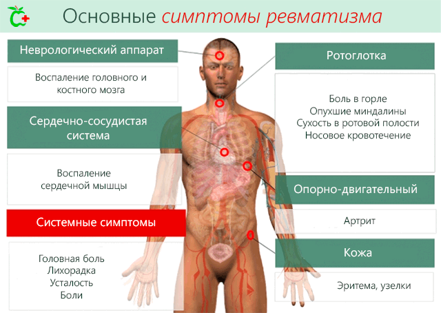 Salv ja tabletid liigeste raviks