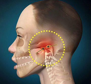 kahjustada loualuu liigeseid ja pea
