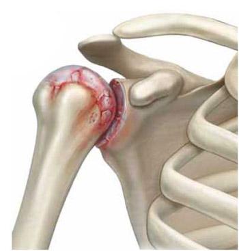 Artroosi 0-1 ola liigese aste Balsams ja hoorudes valu liigestes