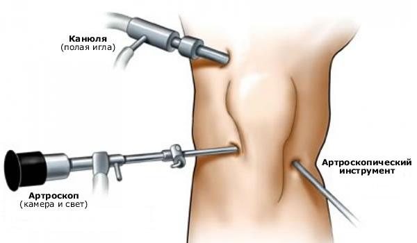 Osteokondroosi liigeste kontrollimine liigeste blokeerimine artroosi ajal