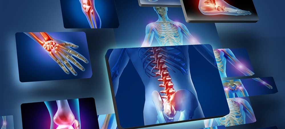 Idometatsiini liigeste valu tabletid Mis on olaliigese toodeldud artroos