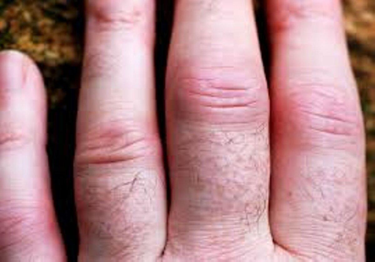 Tiitli liigeste haigus Miks haaravad sormede liigesed