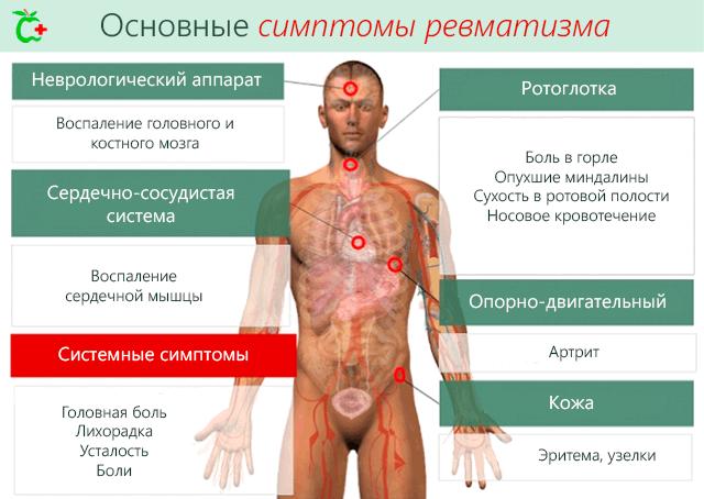 valus liigesed ja norkus Poletik L SENAV-ravi