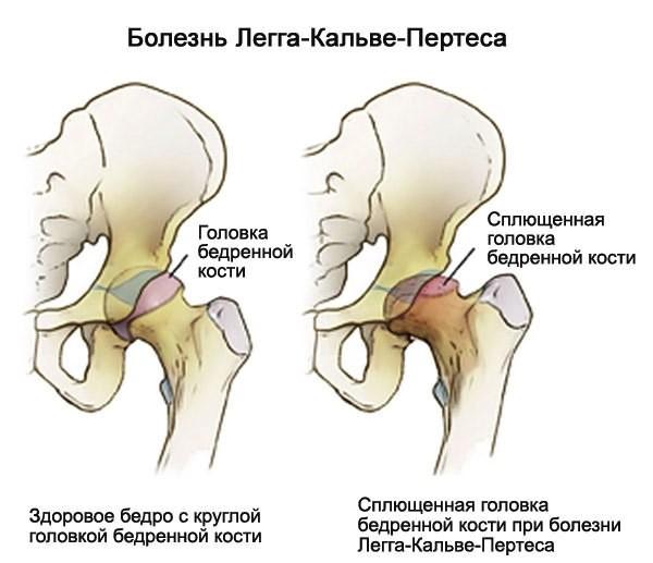Endokriinse artropaatia haigused liigeste