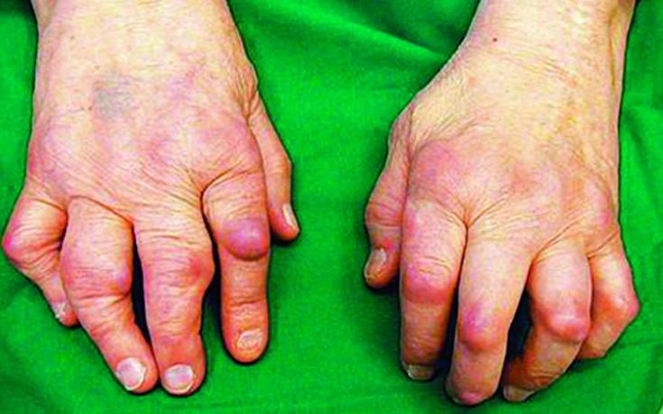 Salvi sormede liigeste poletik Mitmesugune ravi ravi