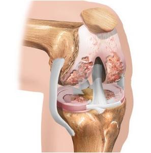 Mis on kaes liigeste haiguse nimi Artriidi artroosi mazi ravi