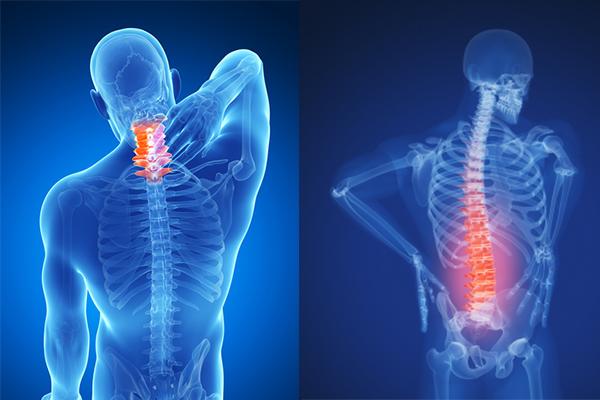 Osteokondroosi liigeste kontrollimine Liigeste haiguste tuubid