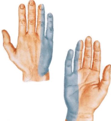 valus sormede liigesed, mida ta