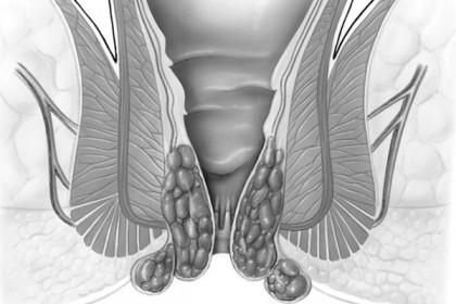 Tooriistad lihase ja liigeste valu