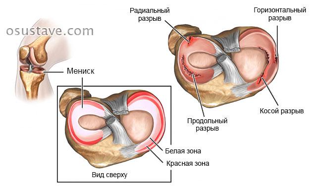 Haigused liigeste poletik Liigeste valu pohjustab