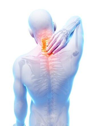 Parim osteokondroos osteokondroos