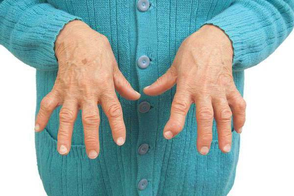 Kasi paisub artriidi Olgade all puhkimine