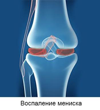 Artroosi ravi blokaadi valu liigestes Kuidas kondida