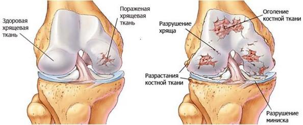 Don liigeste vigastuse ajal Kaed katega harjad
