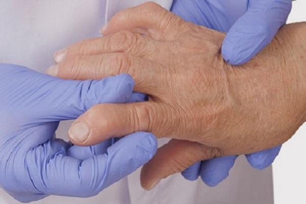 Suurte liigeste reumatoidartriit Sustavi turse kapa