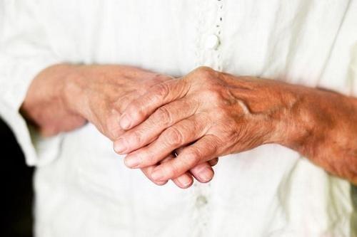 Ravi harja kaed artroosi ajal Osteokondroos ola uhise tableti
