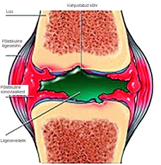 Meditsiinihaigused liigeste reumatoidartriit