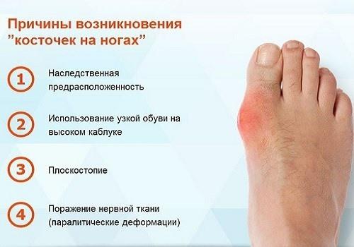 Vaikeste liigendite ravi artroosi kodus