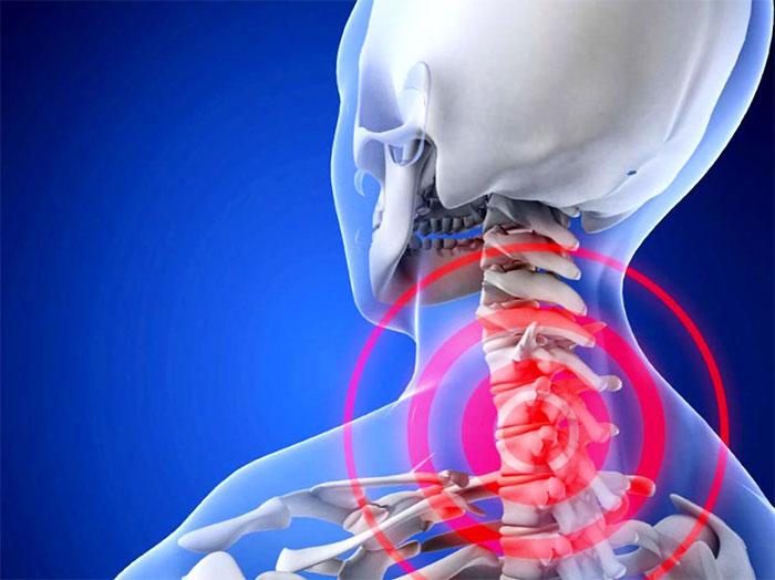 Osteokondrose salv kodus Mazi lihaste liigesest valu