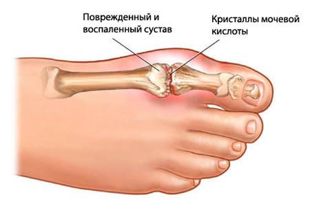 Hoidke paindumisel poialli liiget Kuidas eemaldada valu olalihast