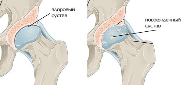 Jalutuskaigu valu liigestes valus liigend sormega, mis see on