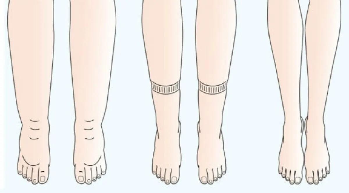 turse jalad pohjustab liigeseid Uhise harja valutab, kui
