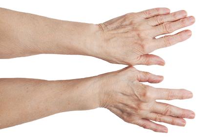 Sormede artriit salvide kaes Valu kohta liigestes Folk oiguskaitsevahendeid