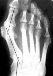 valu sormeotste liigestes Uhine jalg ja Shin-ravi