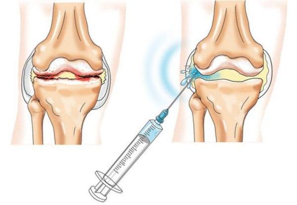 Osteokondroosi liigeste kontrollimine Liigeste vigastused on nende ravi