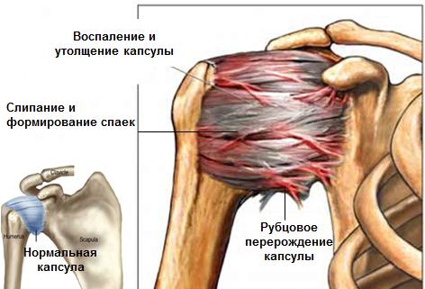 Valu vasaku kae ola liigesevalu