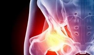Harja liigeste poletiku ravi valu paremal kuunarnukis kui ravida