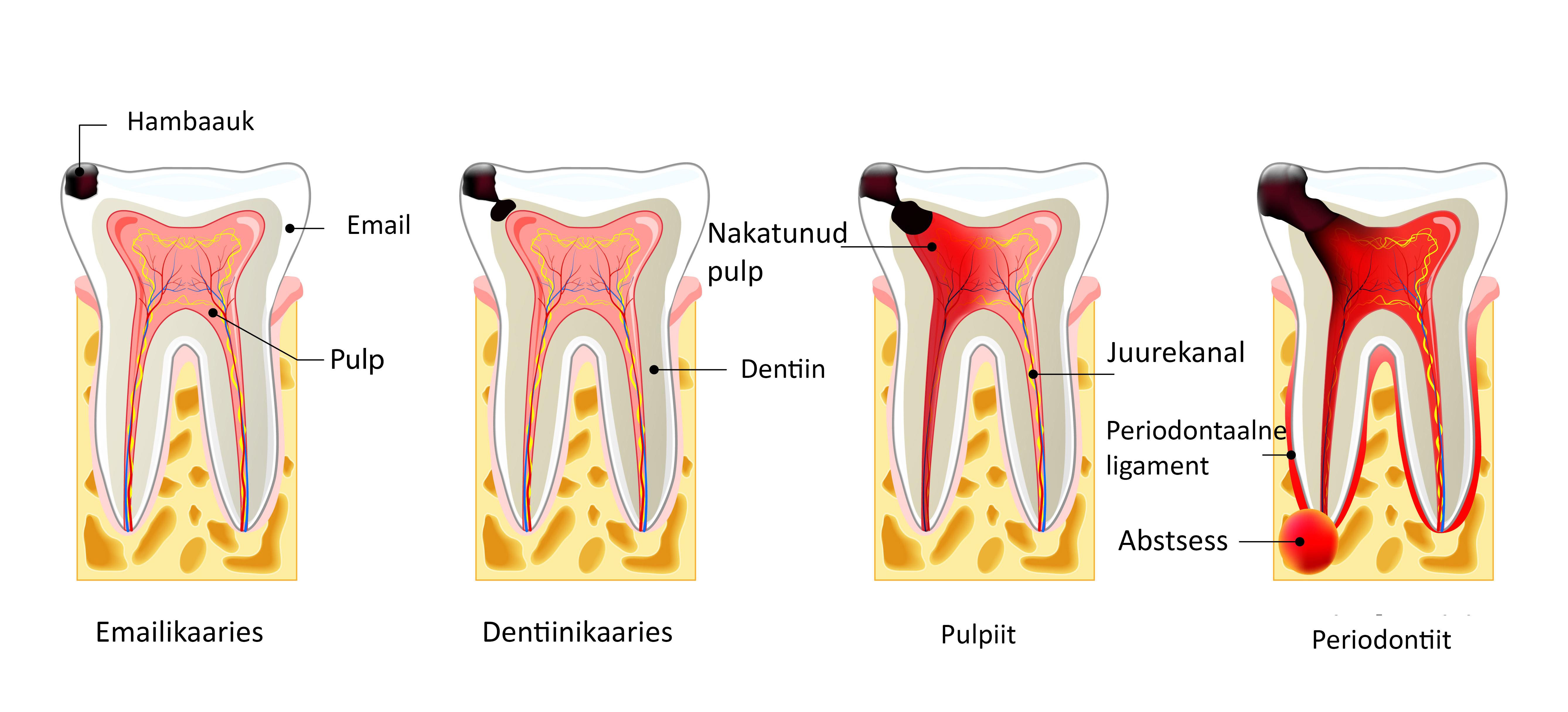Kui hambaarst valutab Laulud artroosi raviks
