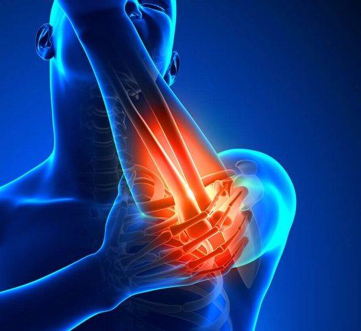 Koostatud liigesed, kellele uhendust votta Biceps valutab kuunarnukk