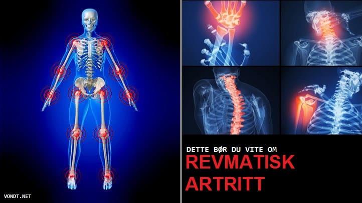 3 kraadi ahviliste liigeste artroos Probleemid liigeste ravi