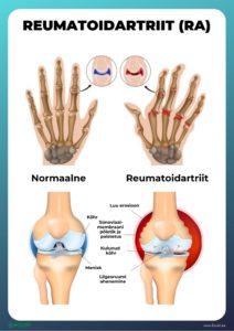 Valu sorme liigeses parast vigastust Slap poidlad