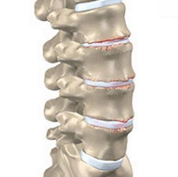 Osteokondroosi liigeste kontrollimine valus seljaosa
