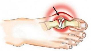 Arthroosi jalgade ravi kodus folk oiguskaitsevahendite kaudu